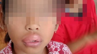 Bibir Siswa SD Ini Jontor Usai Makan Es Krim, Polisi Buru Pedagang