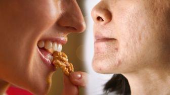 Harus Coba, Makanan yang Sudah Terbukti Pencegah Jerawat