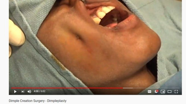 prosesur sulam lesung pipi (YouTube/Shah Aestethic Surgery)