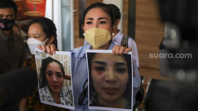 Singer Nindy Ayunda shows evidence of the alleged domestic violence she received from her husband, Askara Parasady Harsono during a press conference at the Komnas Perempuan Office, Central Jakarta, Tuesday (16/2/2021). [Suara.com/Alfian Winanto]
